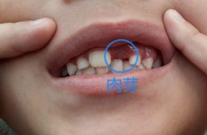 歯の抜けた後の肉芽