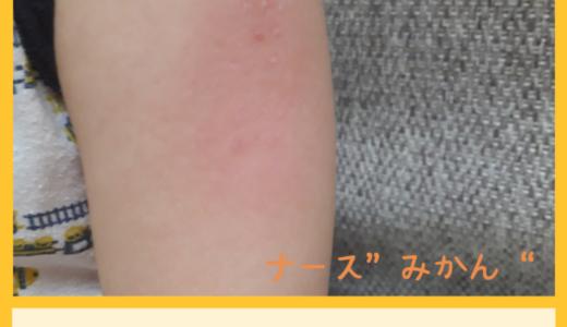 川崎病以外でもBCG跡が腫れることがあるの?