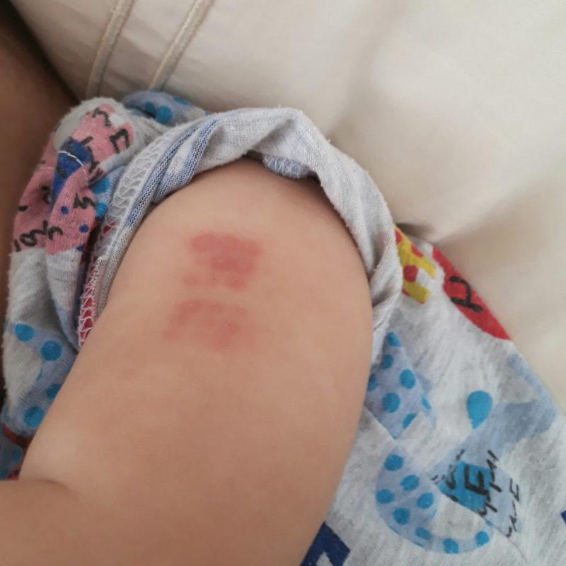 BCG接種後3日目のコッホ現象の写真