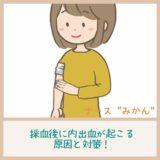採血後腕を押さえる女性