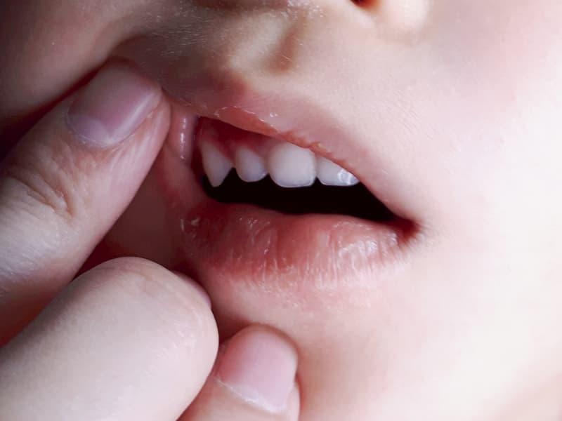 真っ赤な歯肉炎