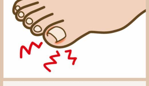 看護師が教える!巻き爪を自分で切る方法とおすすめ道具!!